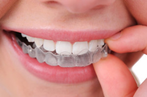orthodontic-clear-braces
