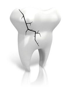Dentist San Antonio