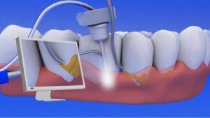 Nobleton Dentist