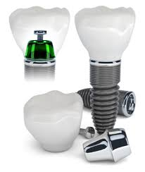 Dental Implants Nobleton