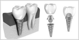 Dental Implants Hill 'n Dale