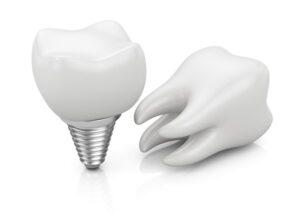 Dental Implants Wesley Chapel