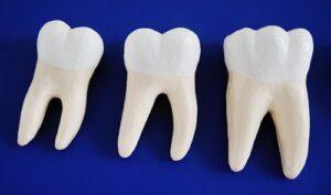 Dental Implants Lecanto